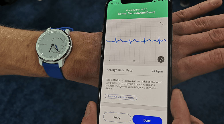 withings move ecg data