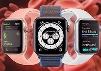 Apple Watch soll 2022 ein großes Gesundheits-Update bekommen