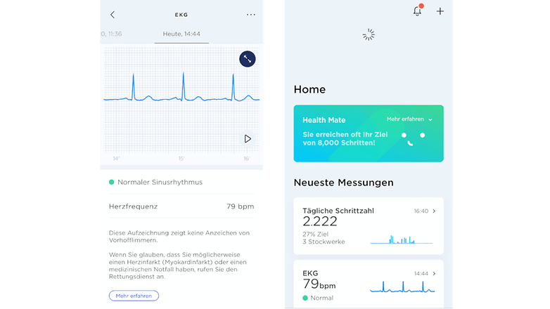 withingsscanwatch app